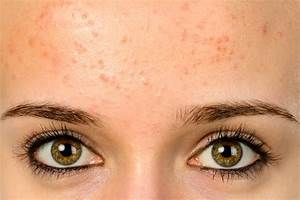 Acne More Than A Cosmetic Problem Us News