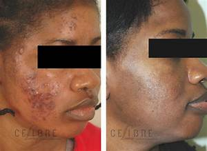 Acne Scars Laser Removal Treatment Before After Pictures 1