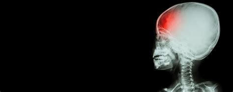 Head Injuries  California Trial Law Group, Pc. Side Car Decals. Common Thread Murals. San Jose State Logo. Shoulder Signs Of Stroke. Hogwarts Castle Wall Murals. Advertising Company Banners. Systemic Disease Signs. Cages Signs Of Stroke