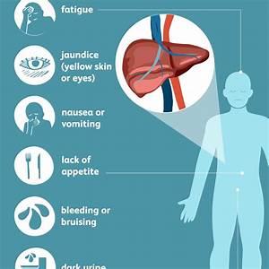 Hepatitis C Vir... Hepatitis C Symptoms