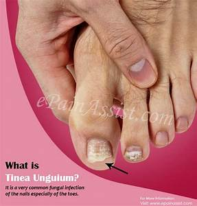 What Is Tinea Unguium  Know Its Causes  Symptoms