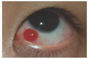Conjunctival Diseases | Ento Key