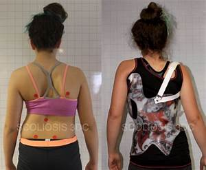 Scoliosis Brace for Patients Who Don't Want Surgery ...