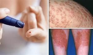 Diabetes type 2 symptoms: Signs of high blood sugar on ...