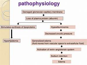 Nephrotic syndrome