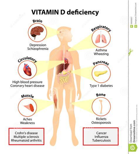 vitamin d deficiency symptoms and diseases stock vector