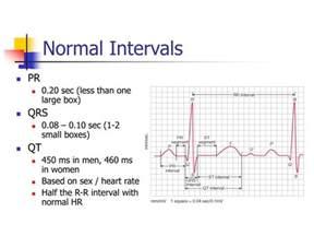ppt ekg interpretation powerpoint presentation id 3221637
