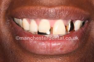 Gold Tooth Crown Designs