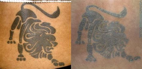 tattoo removal process cost ultimate guide