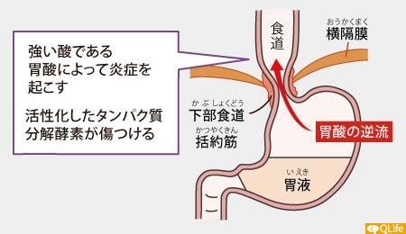 逆流 性 食道 炎 喉 イガイガ