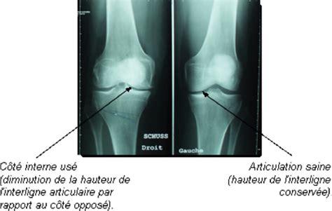 douleur al interieur du genou chirurgie du genou chi poissy germain en laye