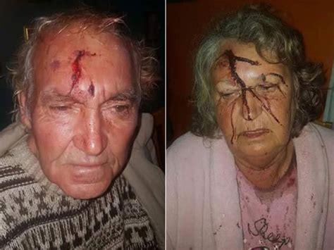Farm attack, 70-Year-old Farmer beaten Tzaneen   South