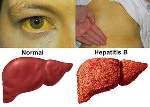 Ciri Orang Hamil Ciri Ciri Penyakit Hepatitis Dan Penyebabnya Pakar Obat