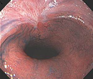 Endoscopic therapy using an endoscopic variceal ligation for minute cancer of the ...  Ulcer Bleeding esophageal varices