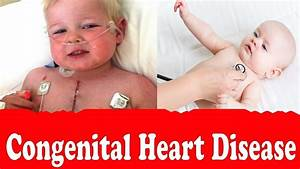 Congenital heart disease,If Your Child Has a Heart Defect ...
