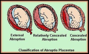 nursing care plan abruptio placenta nursing crib