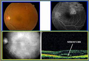MACULAR OCT | Optometry Education