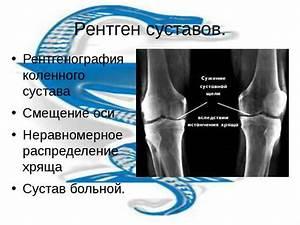 Мази дикуля для тазобедренных суставов