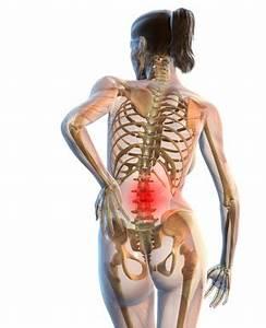 Остеохондроз под лопаткой симптомы и лечение