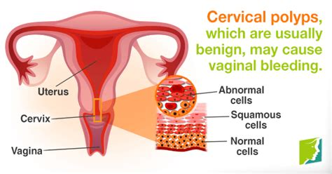 Vaginal Bleeding during Postmenopause | Menopause Now