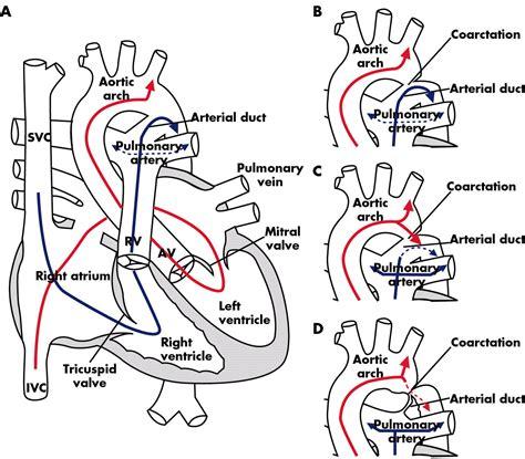 coarctation   aorta  fetus  adult curable
