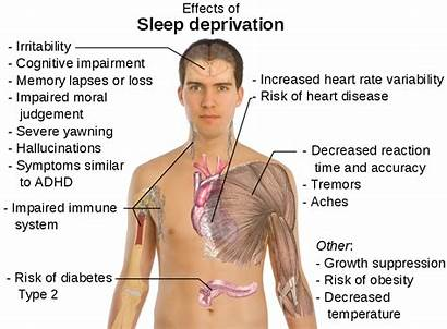 Sleep Deprivation Sleeping Jo Signs Every Children