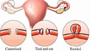 Can I Get Pregnant After Tubal Ligation