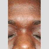 atopic-eczema-on-hands