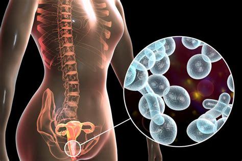 Infecciones Vaginales Cómo Evitarlas Y Cómo Tratarlas