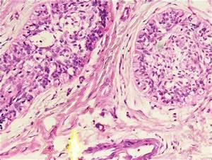 Desmoplastic ameloblastoma Majumdar S, Uppala D, Kotina S ...
