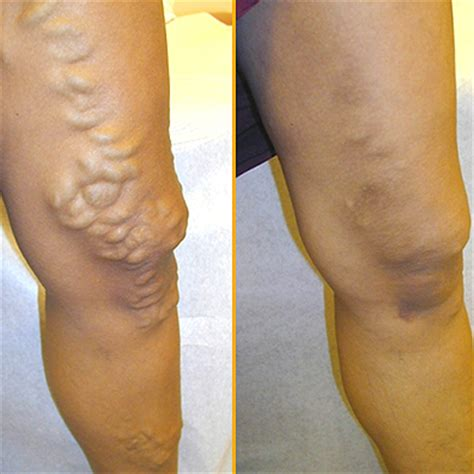 Varicose Vein Treatment Top Three Methods Equally Effective. Masters In Health Care Law Ftp Hosting Sites. Software Companies In Los Angeles. Home Security Services Review. English Medical Schools In Germany. Android File Transfer Windows. Rogue River Community College. Ultrasound Tech Schools In Colorado. About Home Equity Loans How To Work Direct Tv