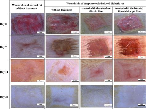 Skin Wound Stages Images