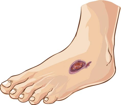 diabetic neuropathy  reversed