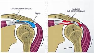 Eramosa Physiotherapy  U00bb Shoulder Pain Blog