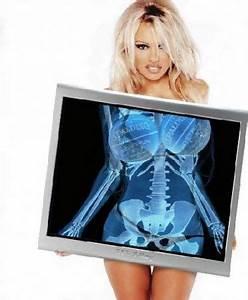 Pamela Anderson X : x rays of celebs and stars ~ Medecine-chirurgie-esthetiques.com Avis de Voitures