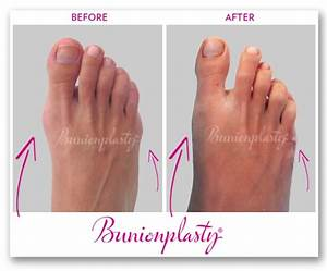Before  U0026 After Photos Of Bunion Surgery