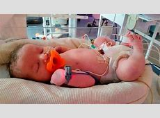 Baby died after doctors read Xray wrong and left catheter
