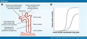The Challenge of Treating Congestion in Advanced Heart Failure  Stroke Diuretics