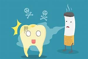 長期吸煙者植牙易失敗 如何補救? | 牙周病 | J. C. LIM牙科診所 | 林宗哲 | 大紀元