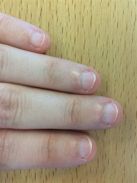 Receding Nail Bed by Habits That Make Nail Beds 100 Images Habit Tic