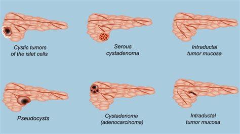 pancreatic cyst everyday health