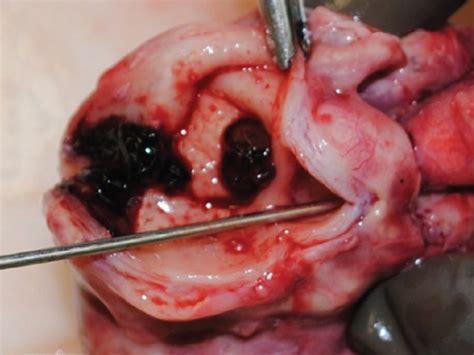 Kawasaki Disease Pictures by Kawasaki Disease Add Corticosteroids To Initial Ivig