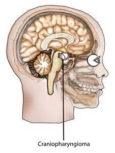 Craniopharyngioma (Craniopharyngioma, Adamantinous; Craniopharyngioma ... Other therapies