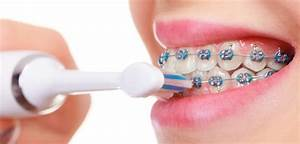 Can You Use An Electric Toothbrush With Braces  Expert
