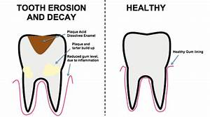 Have Tooth Decay Symptoms  Why You Should Visit Your