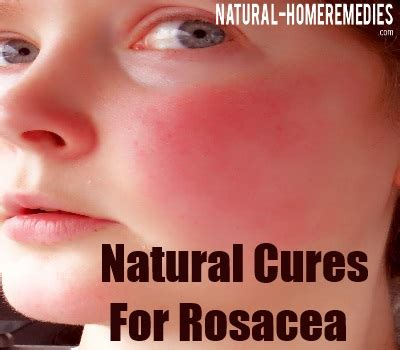 Natural Cures For The Problem Of Rosacea  Curing The. Employee Award Plaques Dance Education Degree. 0 Credit Card No Balance Transfer Fee. Small Business Lawyer Denver. Summit Bank Of Kansas City Geico Chevy Chase. Redeeming Airline Miles Smart Motors Santa Fe. Setup A Website For Free Office Movers Boston. Developing Breast Pictures A2 Digital Printer. How Can I Get Out Of Credit Card Debt