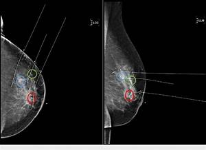 Left Breast Mammogram With Wire Localization For Surgical