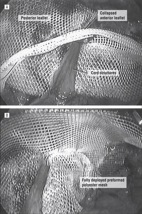 total extraperitoneal laparoscopic inguinal hernia repair