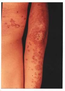 Psoriasis boala