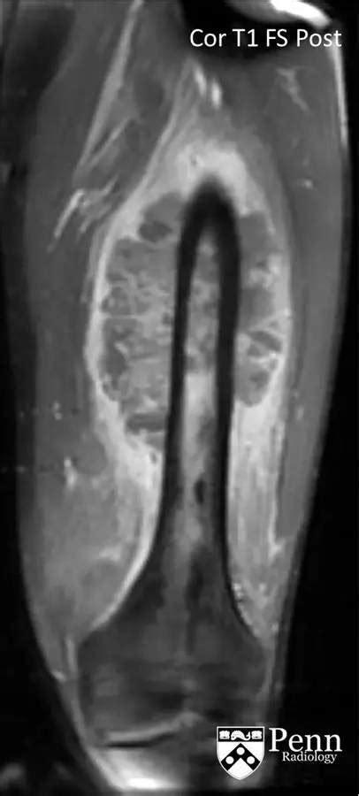 【病例】尤文氏肉瘤1例影像表现 – 影像PPT